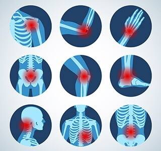 Acupuncture for Inflammation