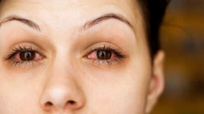Treating Dry Eye with Acupuncture